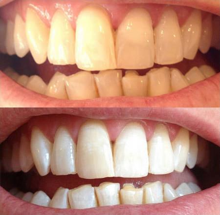 Отбеливание зубов White Light фото до и после