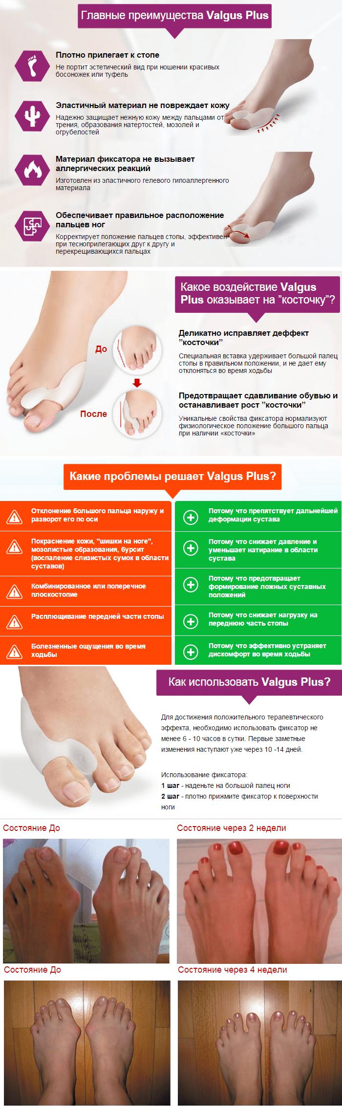 Фиксатор Valgus Plus
