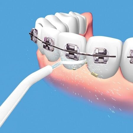 Ирригатор (флоссер) для гигиены полости рта Power Floss - фото pic_96c1967678812d9_1920x9000_1.jpg